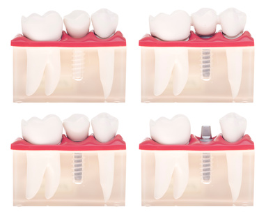 Implant dental