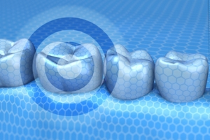 The Benefits of Fluoride for Dental Health